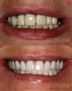 teeth-in-one-day1